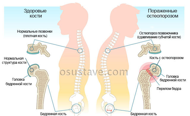 здоровые кости и остеопороз костной ткани