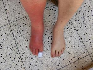 Лечение рожистого воспаления ноги