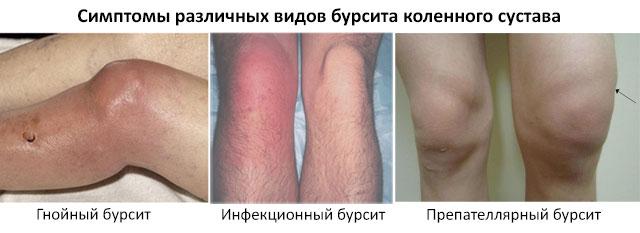 симптомы различных видов бурсита коленного сустава