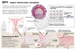 ВПЧ схема развития