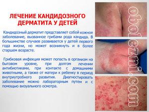 Как лечить дерматит