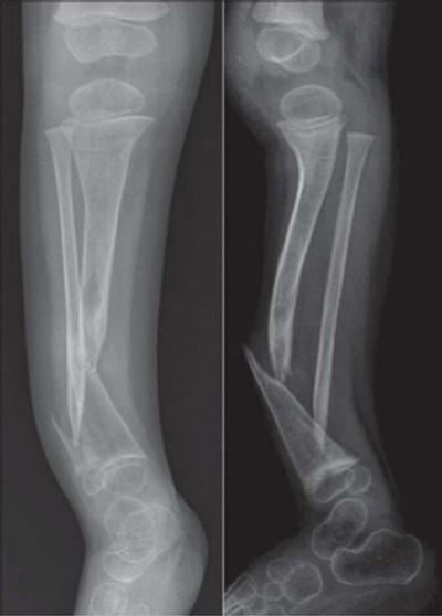 рентгенограмма ложного сустава на большеберцовой кости