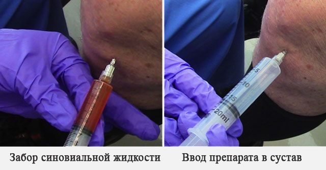 забор синовиальной жидкости и ввод препарата в сустав