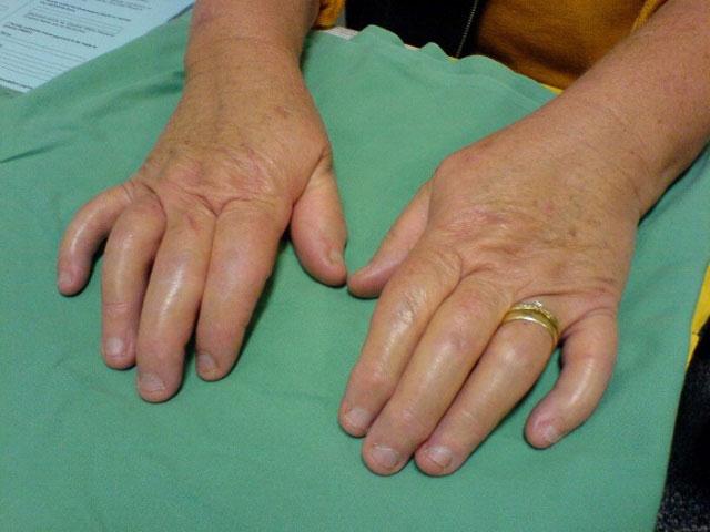 отечность суставов пальцев рук при псориатическом артрите