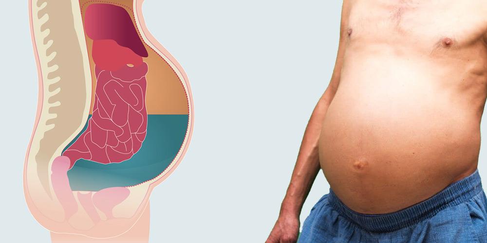 Осложнения гепатита (асцит)