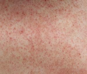 Чем лечить молликулярный кератоз