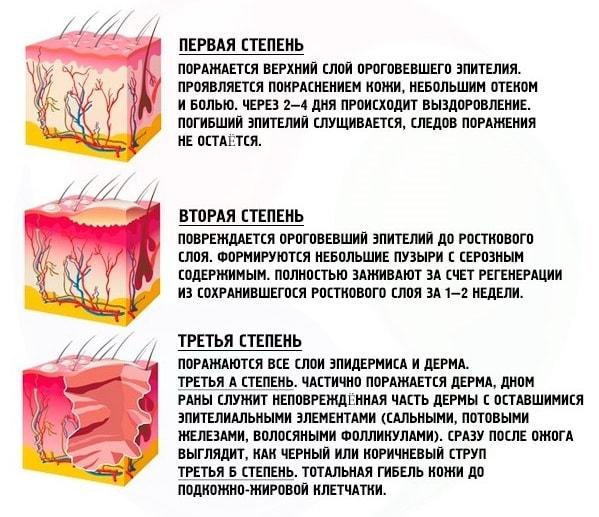 степень солнечного ожога кожи