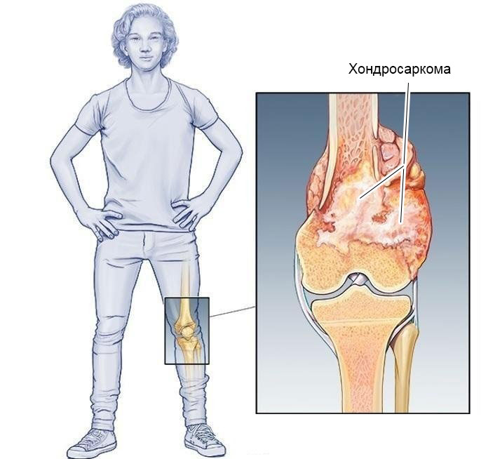 хондросаркома бедренной кости