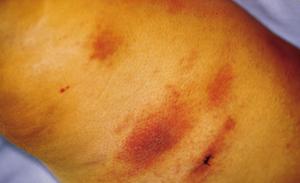 Локализованная форма туберкулеза