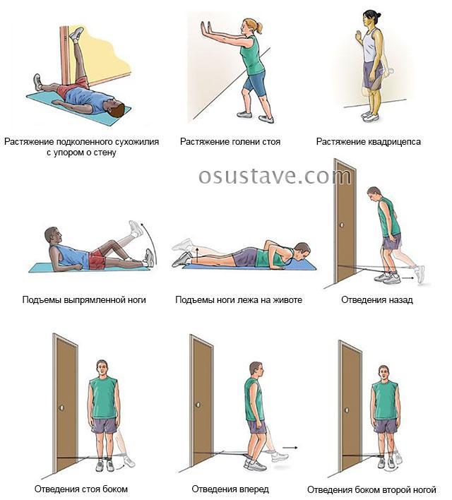 примеры возможных упражнений при болезни Шляттера