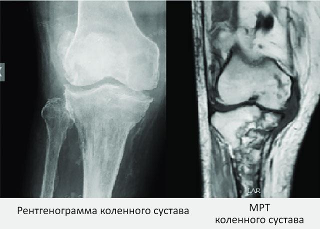 рентген и МРТ коленного сустава, пораженных артритом