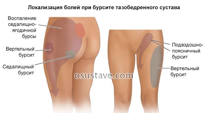 локализация болей при бурсите тазобедренного сустава