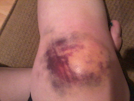 гематома и отек колена