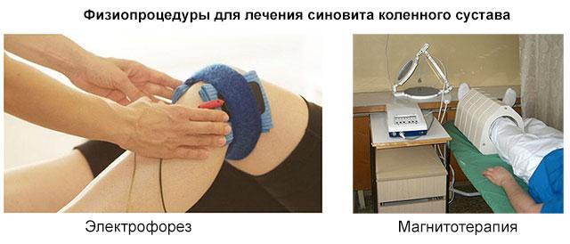 физиопроцедуры для коленного сустава