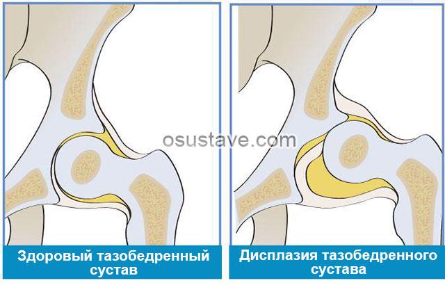 здоровый тазобедренный сустав и пораженный дисплазией