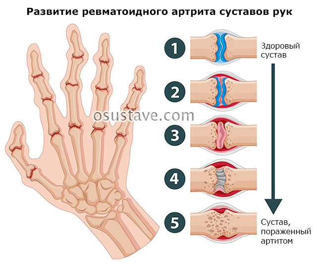 развитие ревматоидного артрита суставов пальцев рук