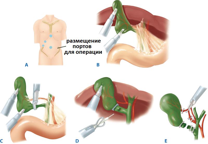 Лапароскопия при холестатическом гепатите