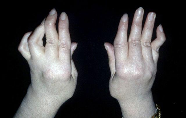 деформация кистей при ревматоидном артрите