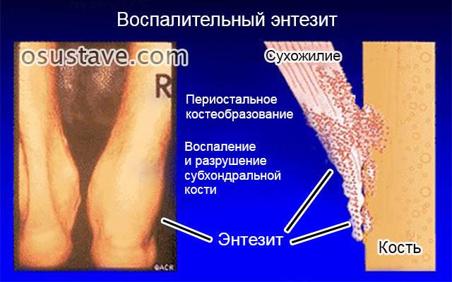 энтезит ахиллова сухожилия (в области пятки)