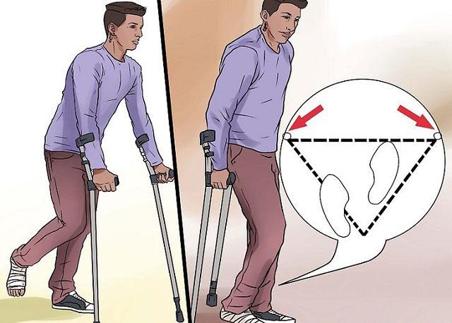 как правильно ходить на костылях, три точки опоры
