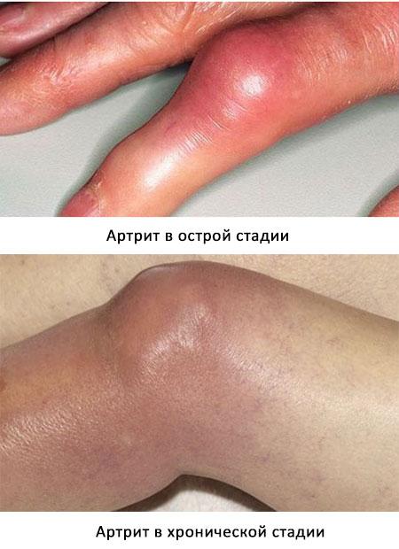 острая и хроническая формы инфекционного артрита