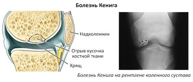 болезнь Кенига