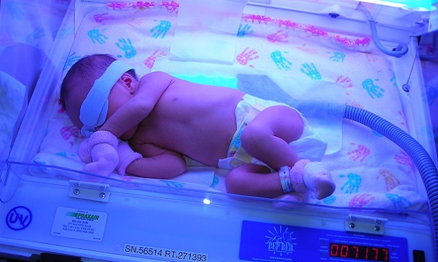 фототерапия при желтухе у новорожденных