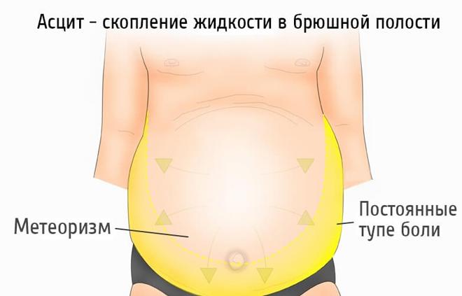 Симптомы вздутия живота при циррозе