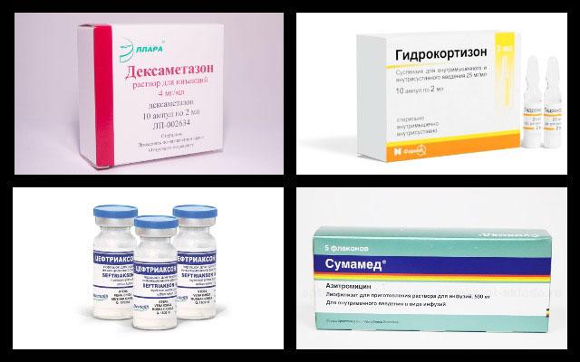 дексаметазон, гидрокортизон, цефтриаксон, сумамед