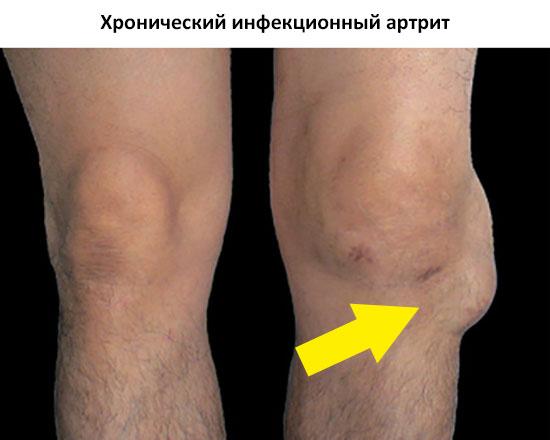 хронический инфекционный артрит
