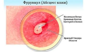 Причины развития фурункула