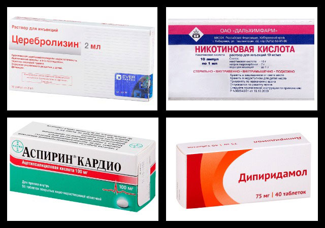 церебролизин, никотиновая кислота, аспирин кардио, дипиридамол
