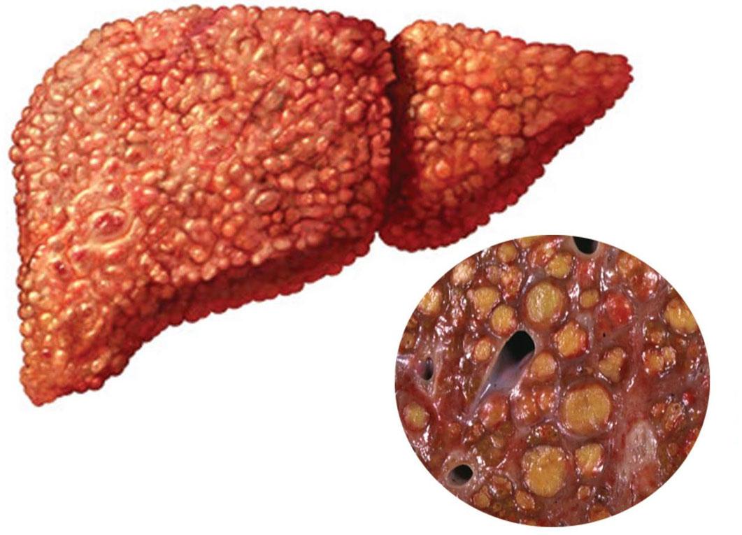 Начальная стадия цирроза печени причины