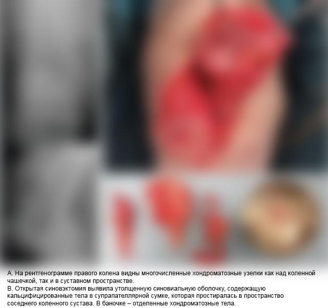 хондроматозные тела на рентгене и после операции