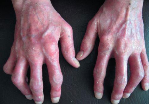 руки, пораженные псориатическим полиартритом