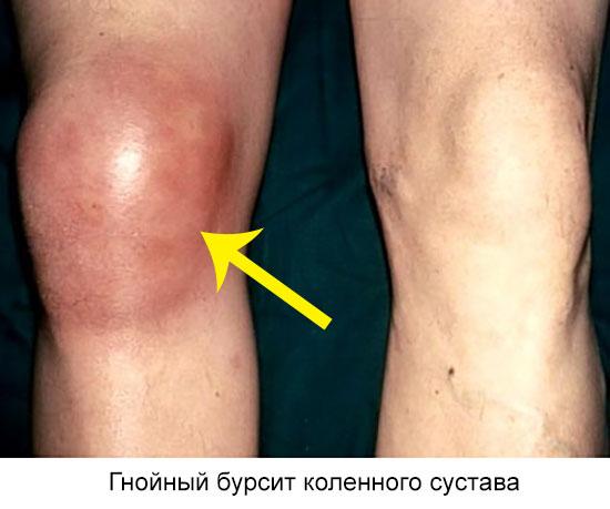 гнойный бурсит коленного сустава