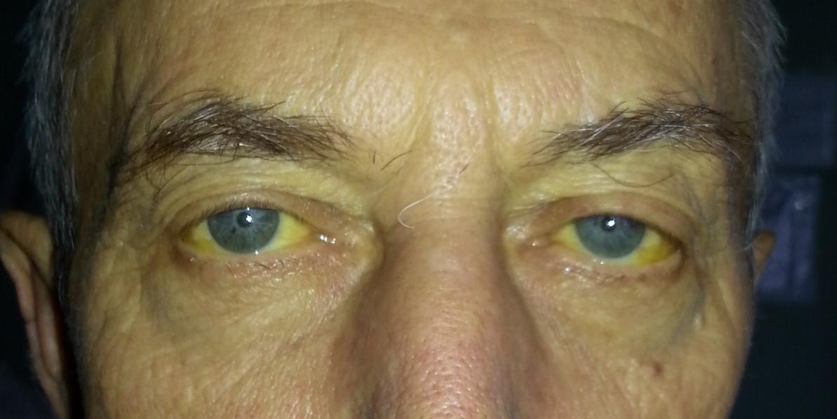 Паренхиматозная желтуха симптомы