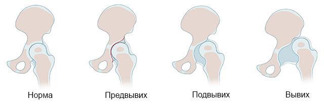 норма, предвывих, подвывих и вывих тазобедренного сустава