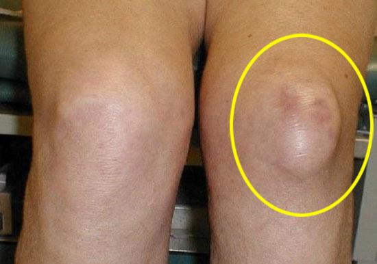 внешний вид колена при остеомелите