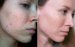 8 месяцев лечения акне iS Clinical