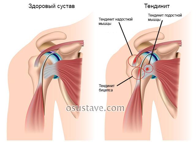 виды тендинита плечевого сустава