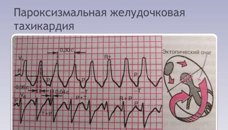 zheludochkovaya-paroksizmalnaya-tahikardiya-na-ehkg