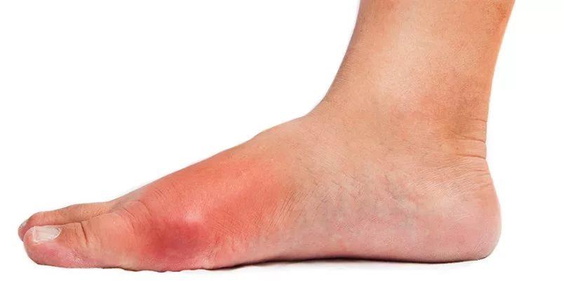 Болезнь рожа на ноге