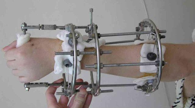 аппарат илизарова на предплечье