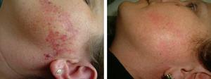 Фототерапия при пятнах на лице
