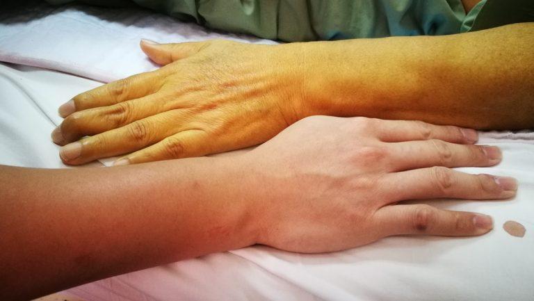Желтый цвет кожи - симптомы гепатита