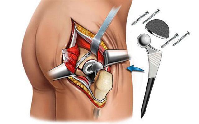 эндопротезирование сустава