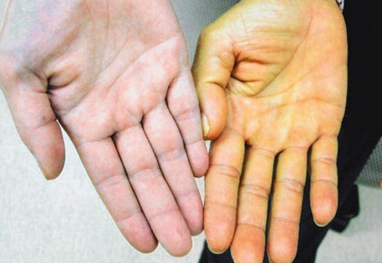 Противопоказания к приему Гепатомакс