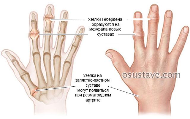 наросты на кистях рук