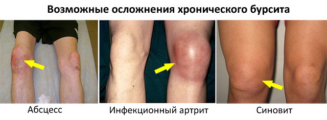 возможные осложнения хронического бурсита колена